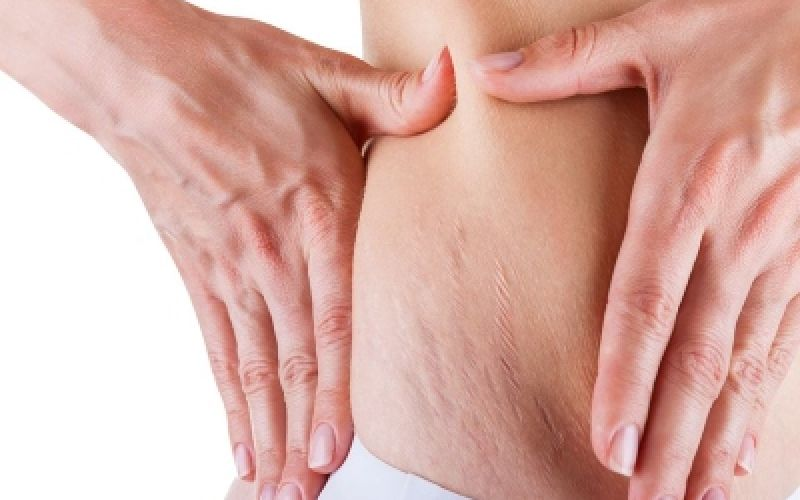 2 Natural ways to deal with stretch marks on our body